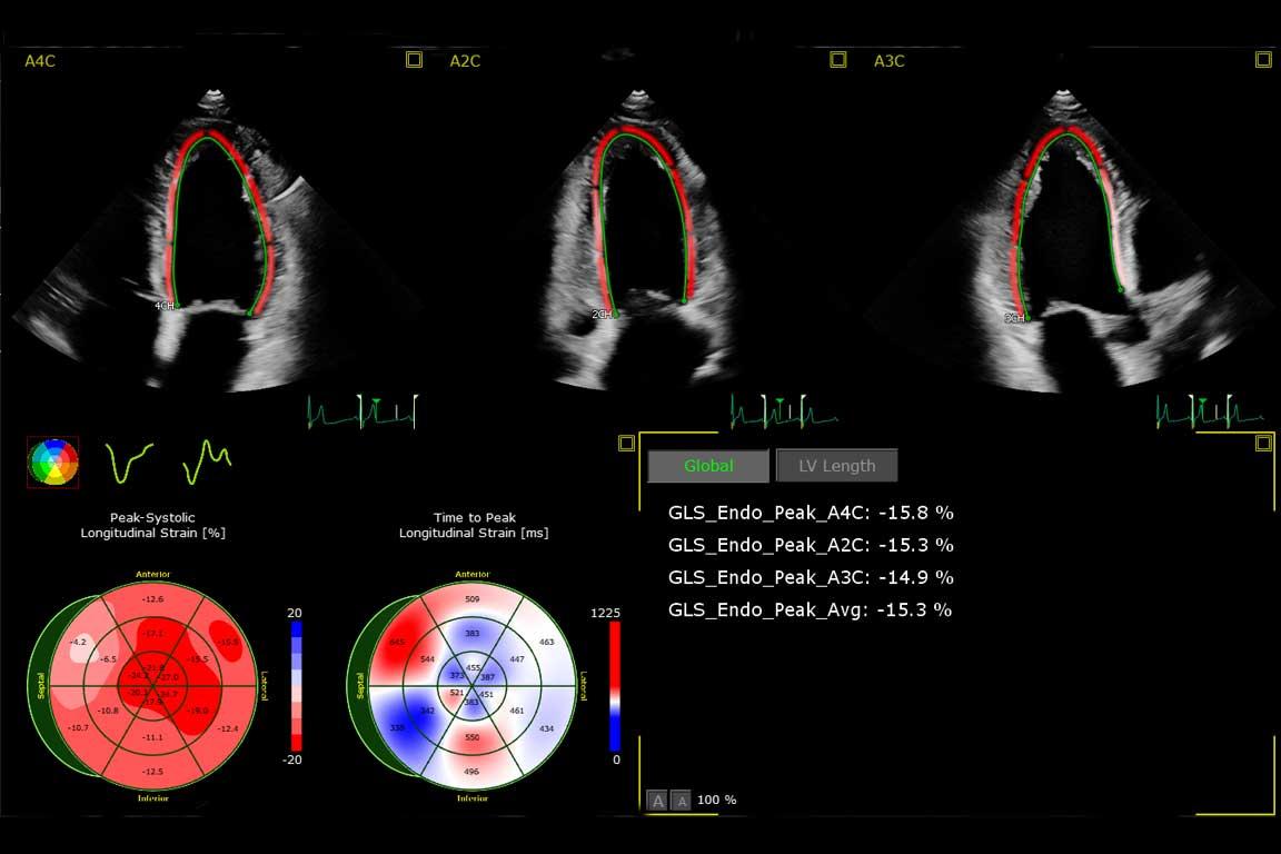Unidad de miocarditis aguda